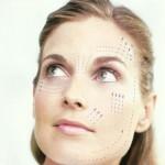 Rejuvenecimiento facial con hilos tensores