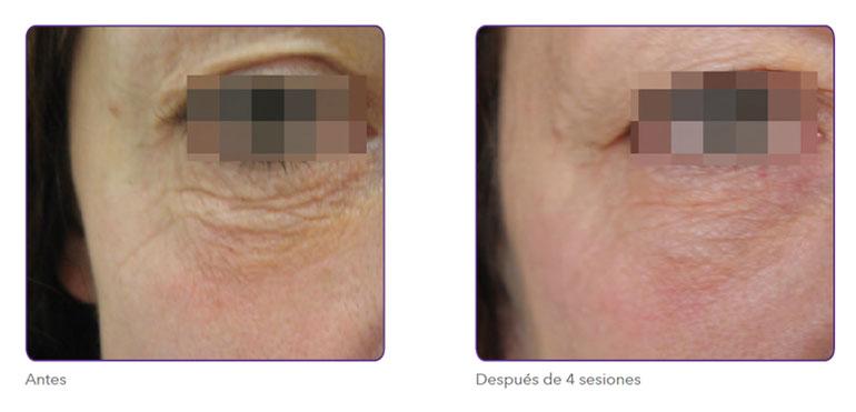 Radiofrecuencia fraccionada para eliminar arrugas contorno de ojos