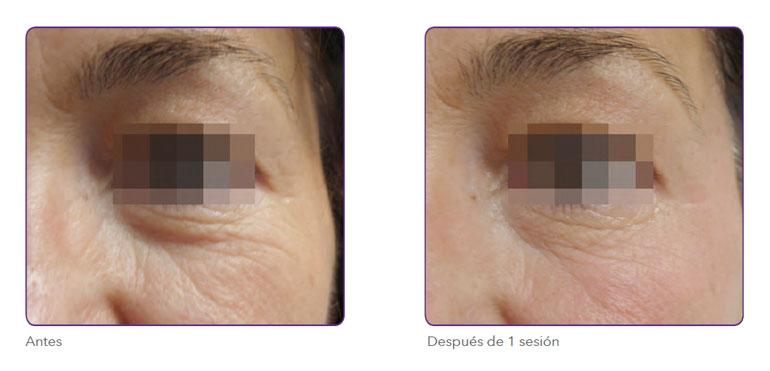 Radiofrecuencia fraccionada para eliminar bolsas de ojos