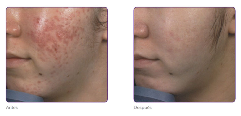 Radiofrecuencia fraccionada para eliminar marcas de acné