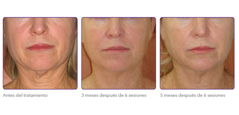 Radiofrecuencia fraccionada para tensado de cara y cuello
