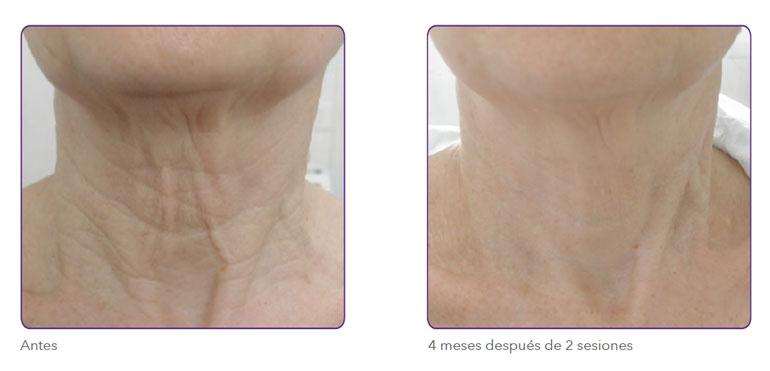 Radiofrecuencia fraccionada para reafirmar la piel