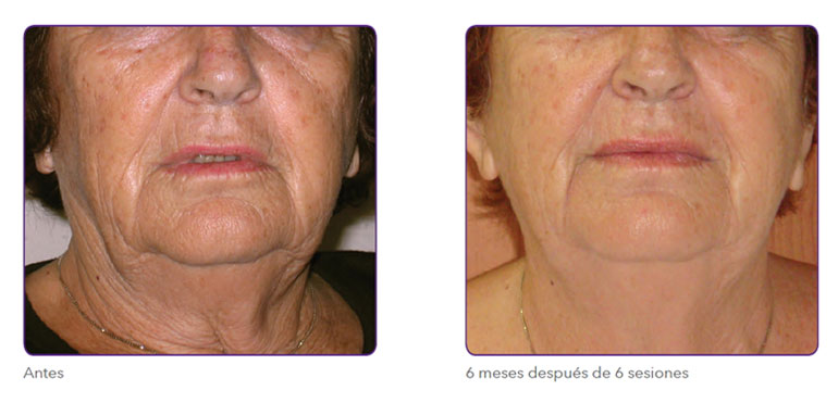 Radiofrecuencia fraccionada para tensado de piel