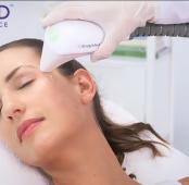 Beneficios de la radiofrecuencia facial